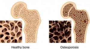 osteo-hip-joint