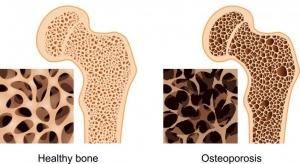 osteo-hip-joint
